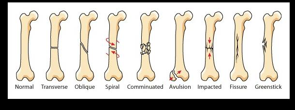 instrideonline.com health types of bone breaks