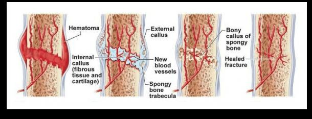 instrideonline.com health bones post broken bones
