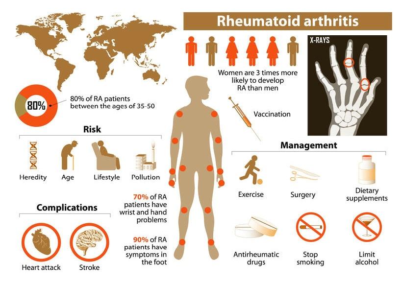 rheumatoid arthritis info chart
